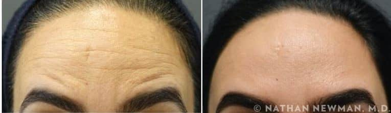 Before And After Botox to Forehead wrinkles