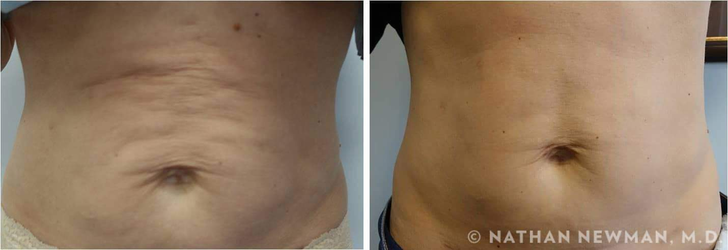 Before and after ThermiSmooth to abdomen