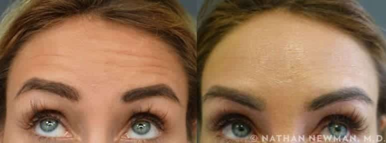 Before and after Botox injections to forehead wrinkles