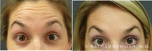 Before and after Botox injections to forehead