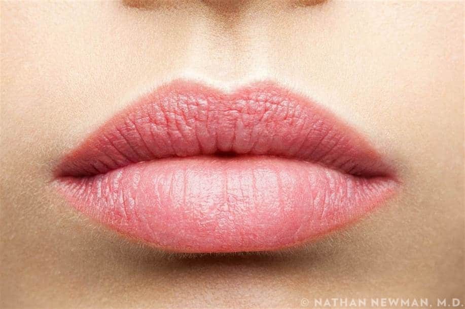 A patient with full, plump lips