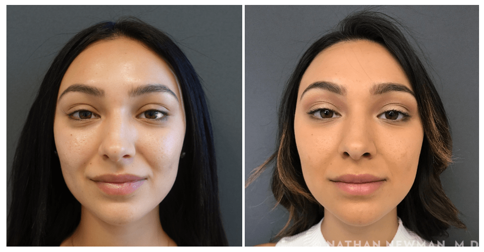 Before and after acne scar revision