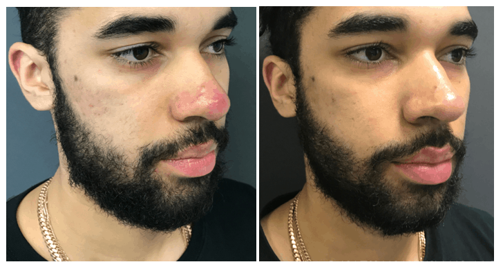 Before and after acne treatment on the nose