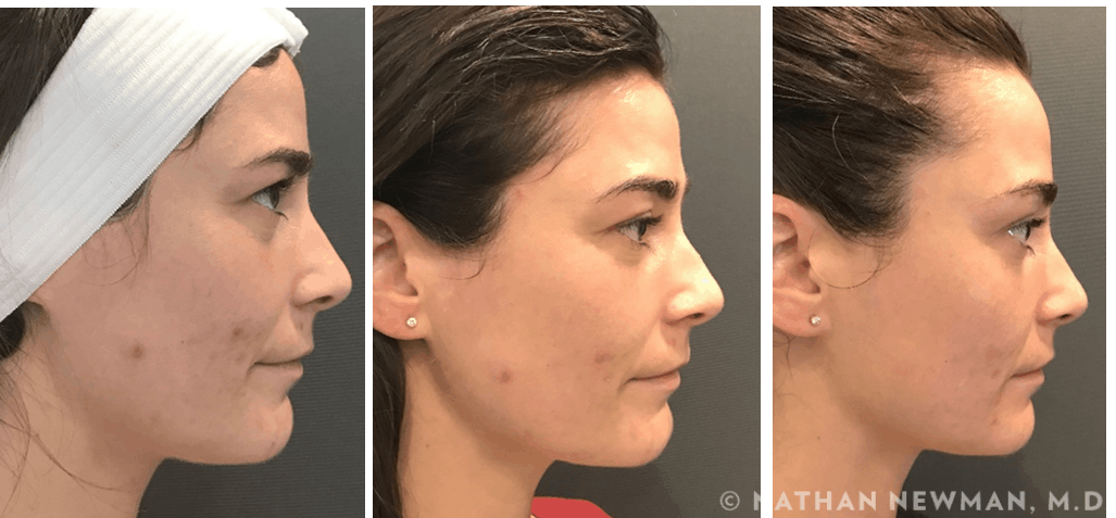 Before and after bioplantica facial treatment