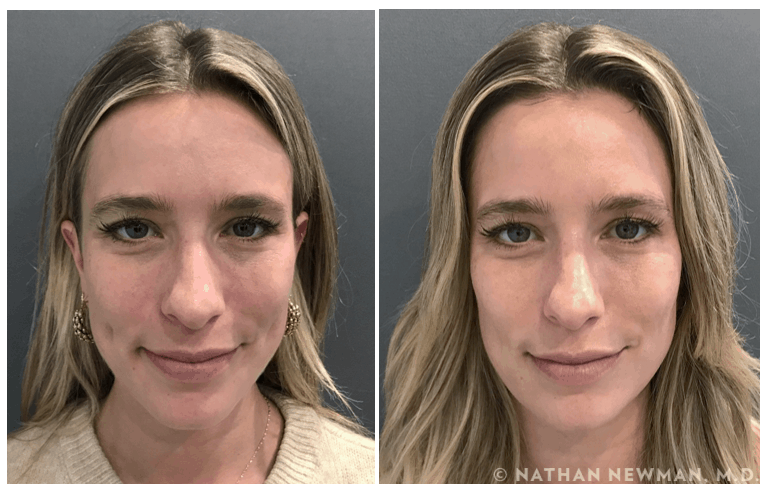 before and after bioplantica facial