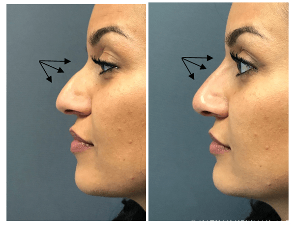 before and after juvederm to the nose
