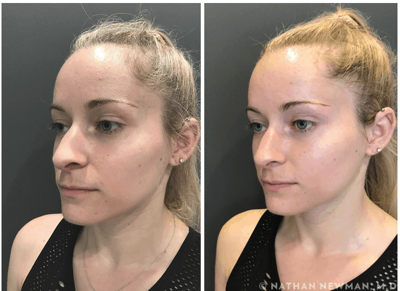 Before and after a facial