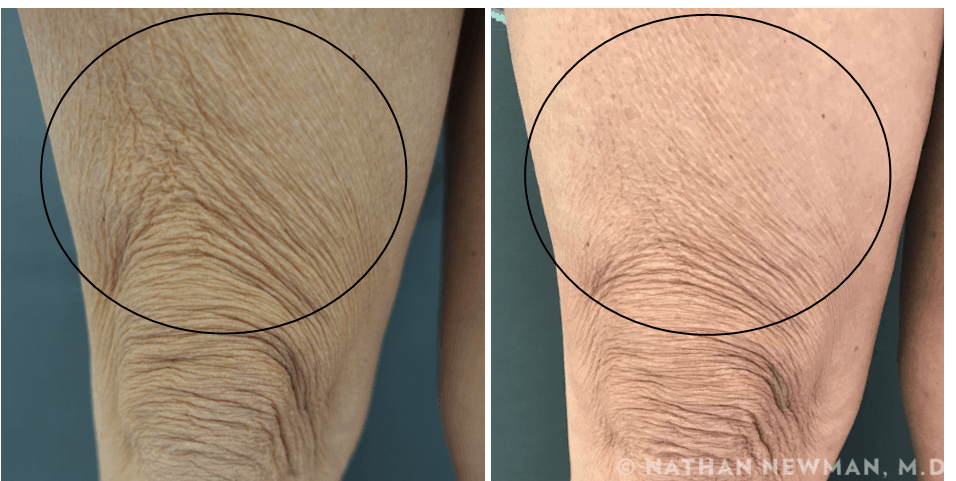 before and after Thermi & TSS to knees