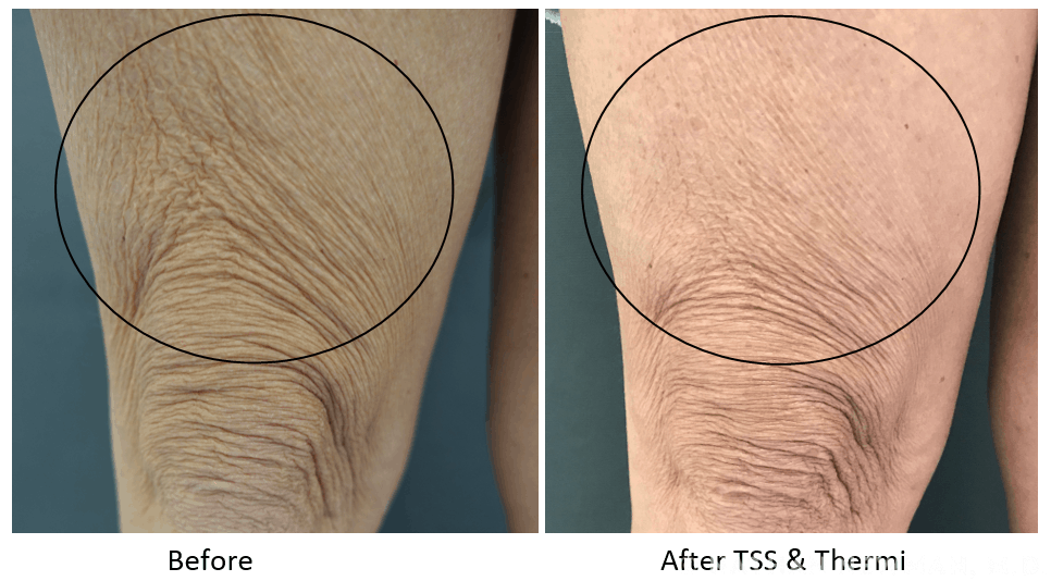 Before and after thermi treatment and TSS on thigh