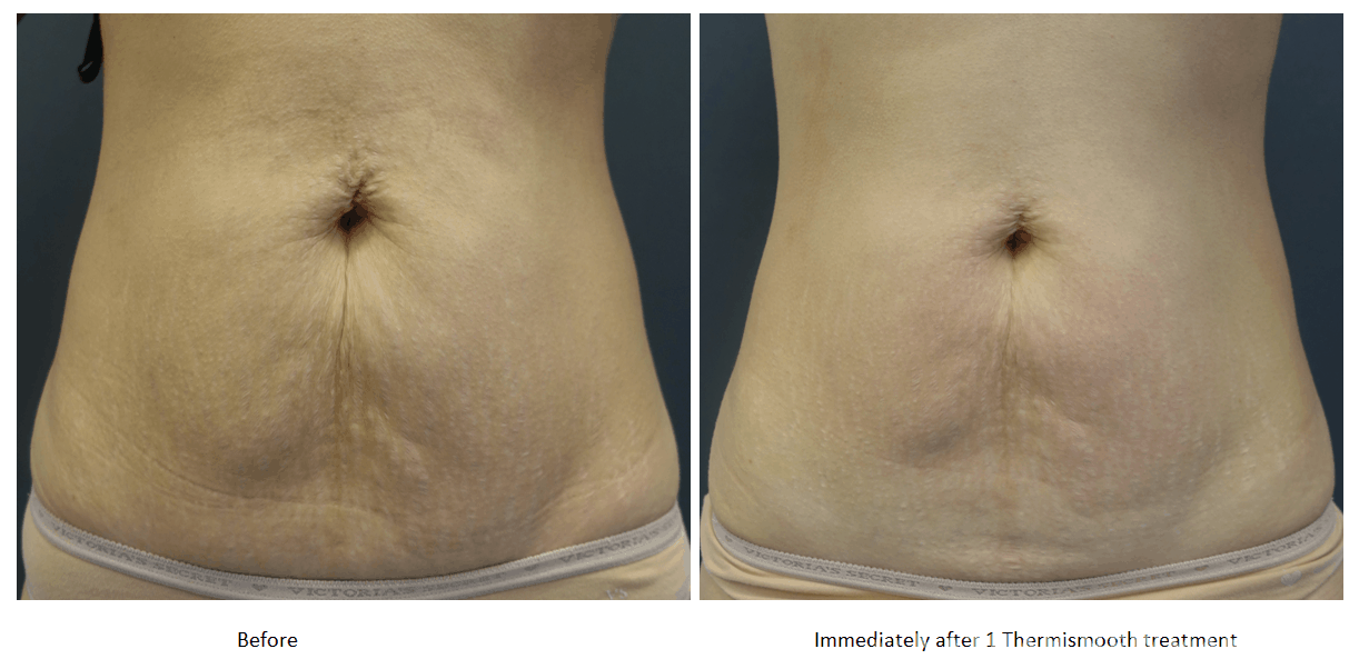 Before and after thermi treatment to the abdomen