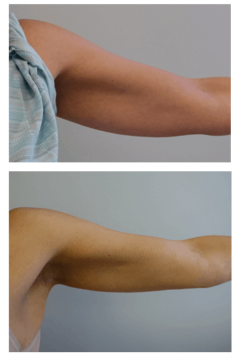 Before and after thermi arm treatment