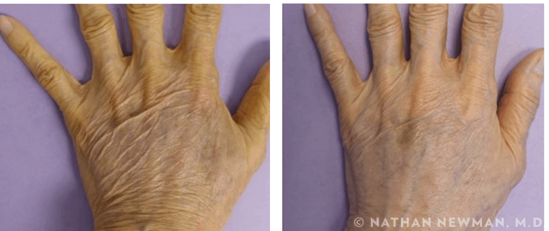 before and after thermi to hands