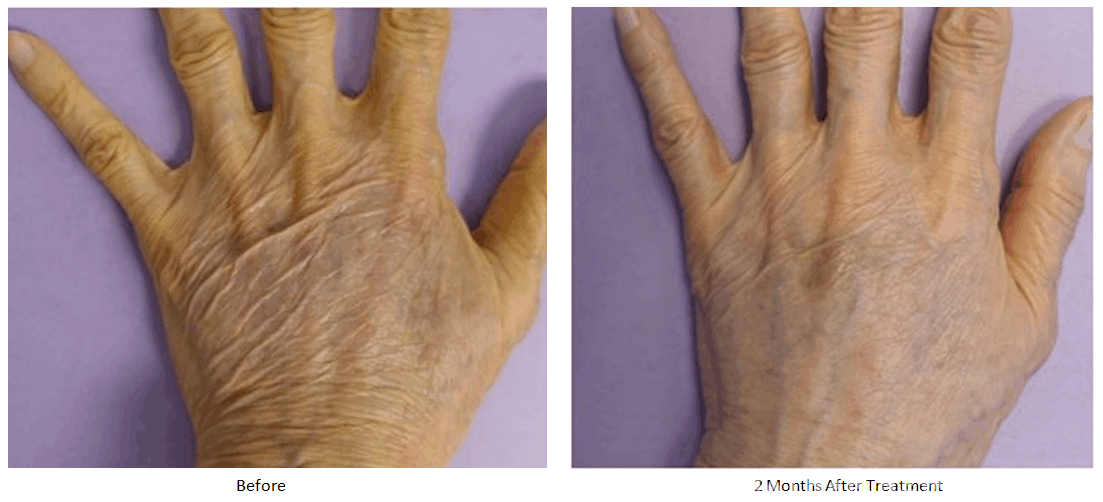 Before and after thermi treatment to the hands