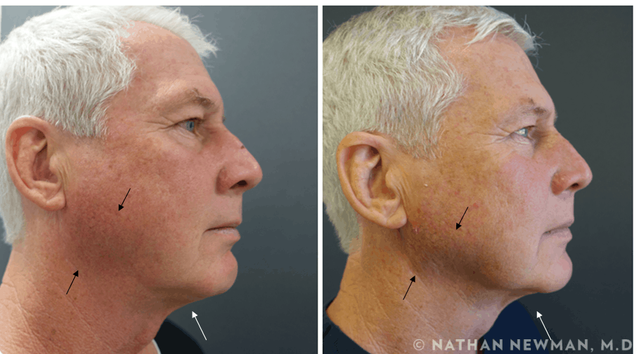 Before and after thermi treatment to the face and neck