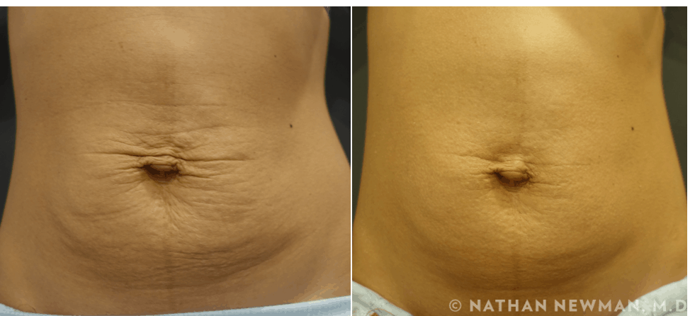before and after thermi to the abdomen