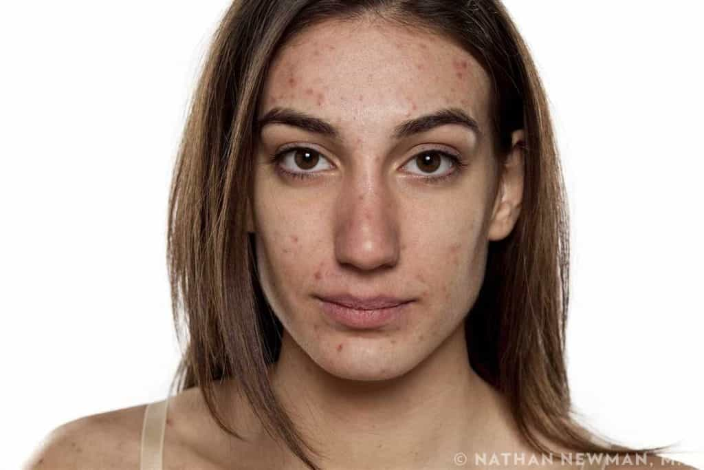 Female patient suffering from acne