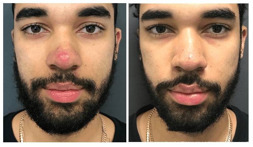 Before and after acne treatment on nose