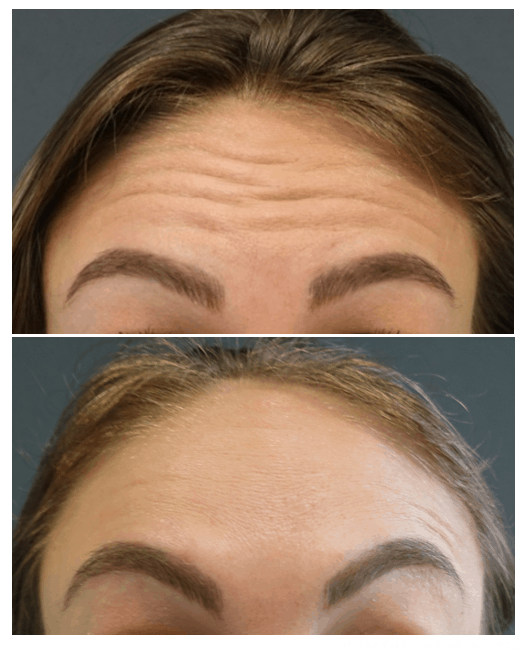 Before and after Botox injection to the forehead
