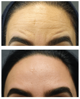 Before and after Botox in forehead