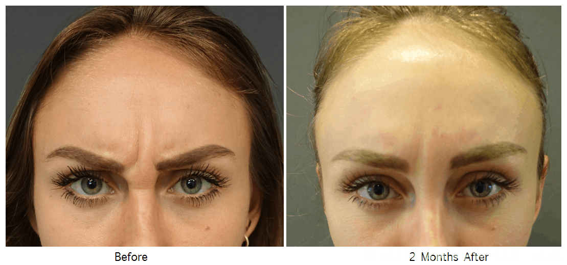 Before and after Botox to the Glabella