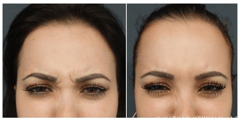 Before & After Votox Glabella KM
