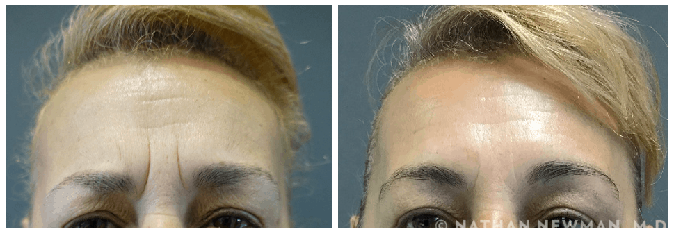 Before and after Botox in the Glabella