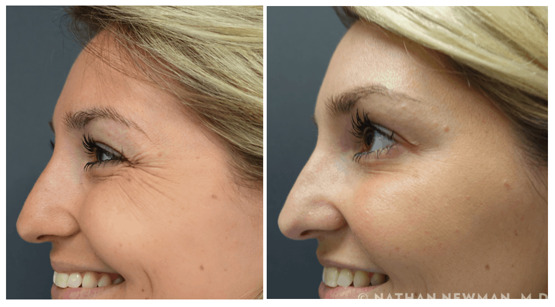 Before and after Botox to crows feet