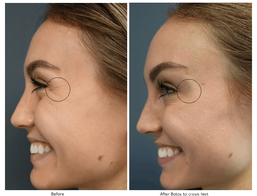 Before and after Botox to lateral eyes