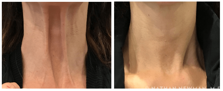 Before and after Botox to the neck