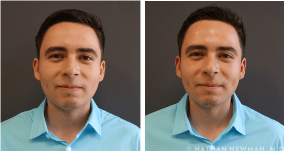 Before and after facial peel