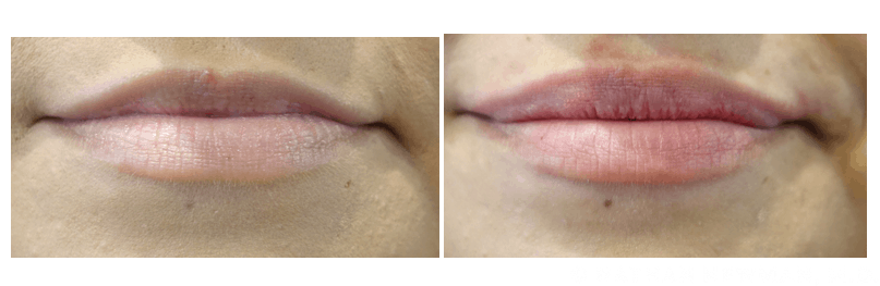 Before and After Volbella Filler to The Lips