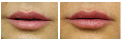 Before and after Volbella to the lips