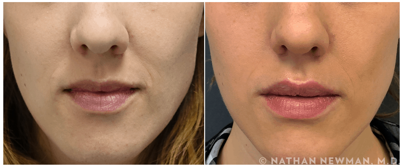 Before and after Volbella to lips