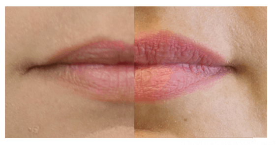 Side by side lips before and after Volbella