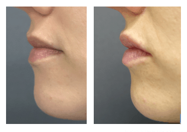 Before and after Volbella to lips side profile