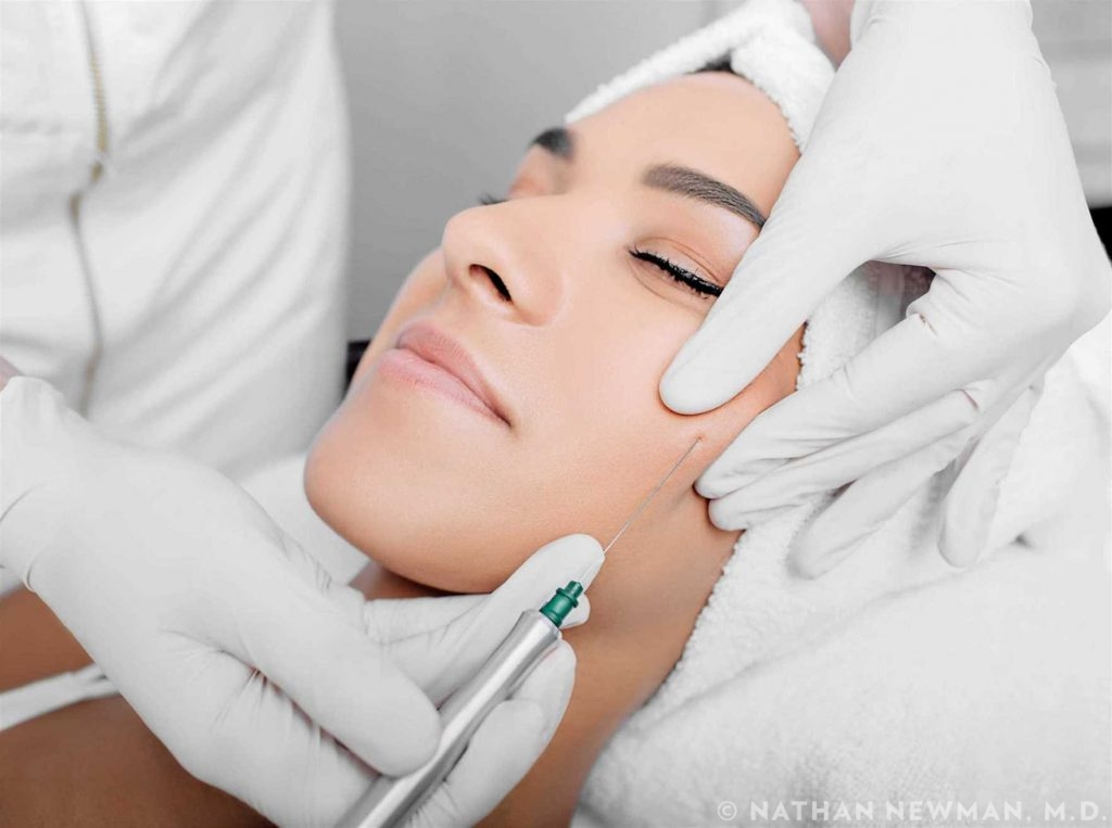 cropped woman face getting facelift , procedure lifting skin