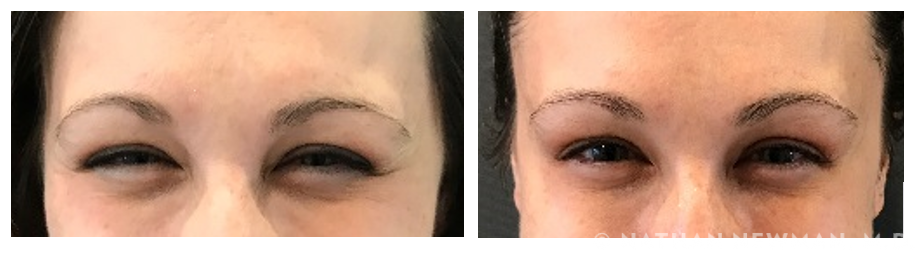 Patient before and after Botox to the lateral eyes