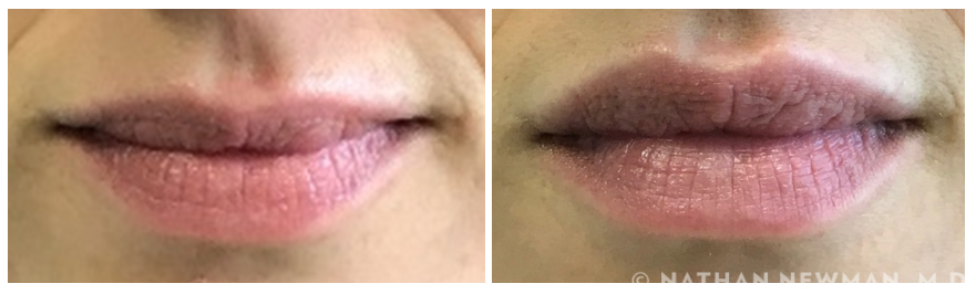 Patient before and after Juvederm to the lips