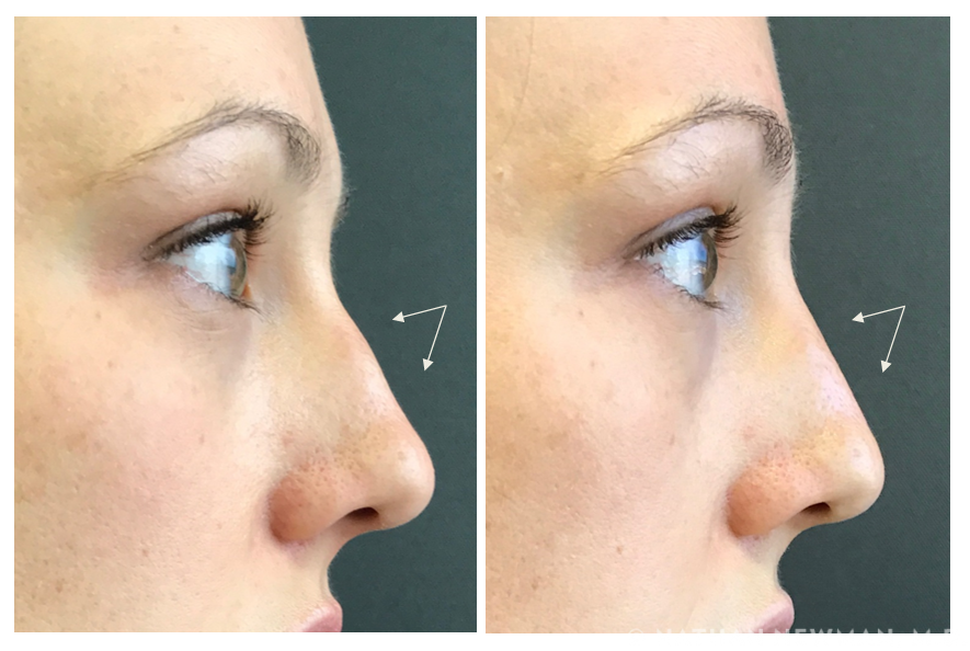 Patient before and after Juvaderm to the nose