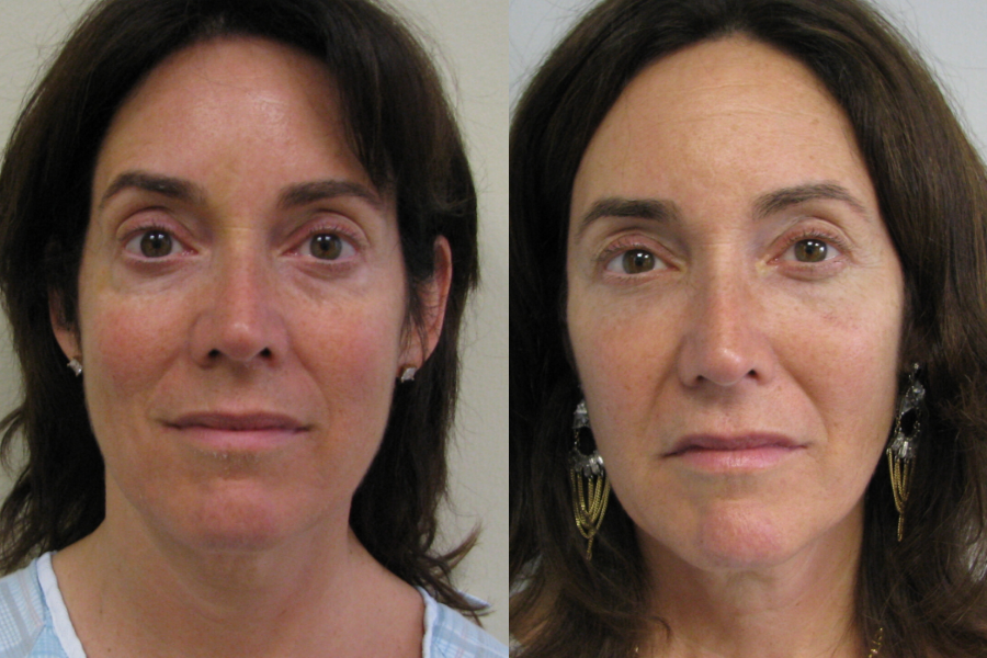 Before and After Stem Cell Lift to Face