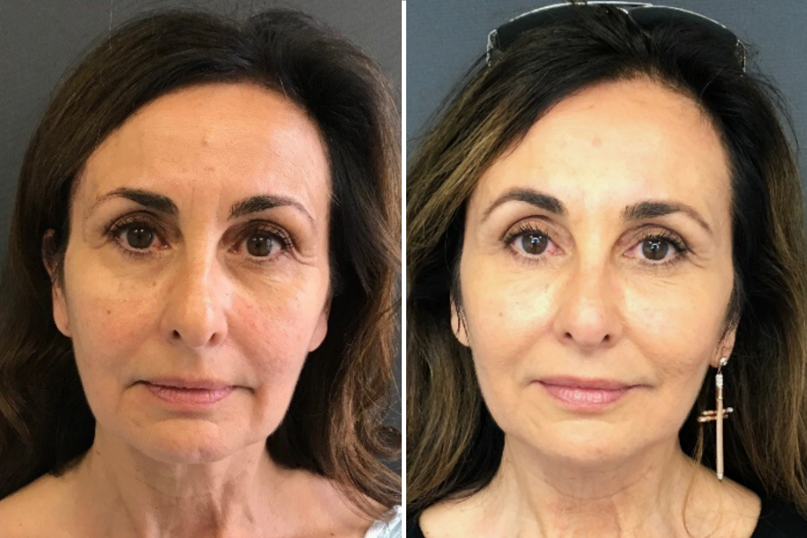 Before and After Stem Cell Lift